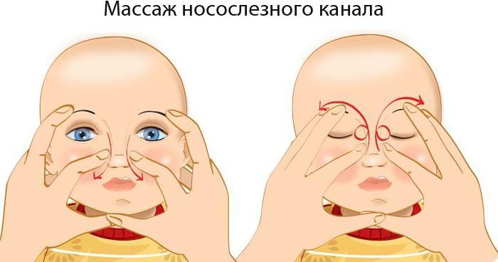 Массаж носослезного канала новорожденному
