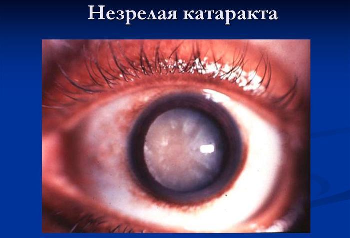 Что такое незрелая катаракта