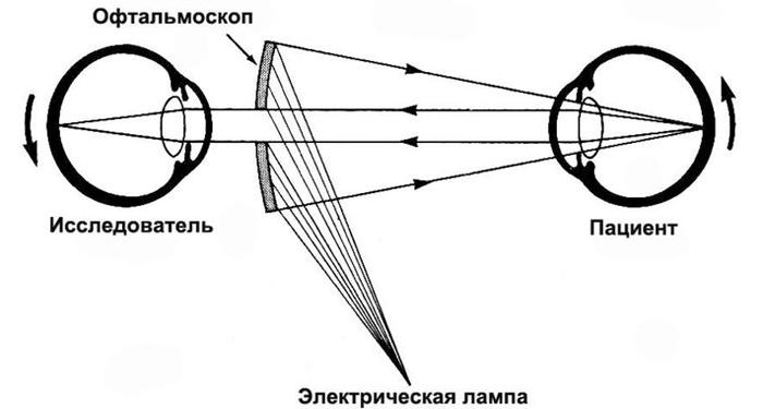 Офтальмоскопия