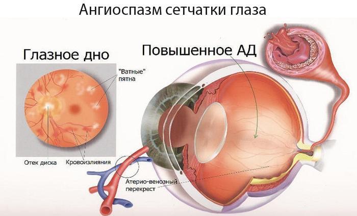 Ангиоспазм сетчатки глаза