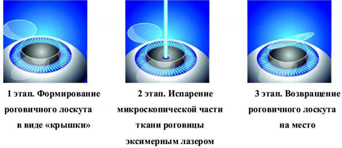 Этап лазерной коррекции зрения