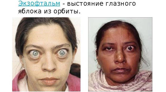 Экзофтальм глаза