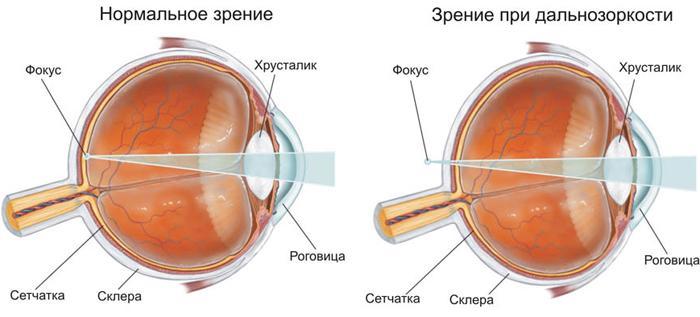 Зрение при дальнозоркости