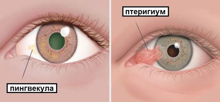 Пингвекула и птеригиум на глазу