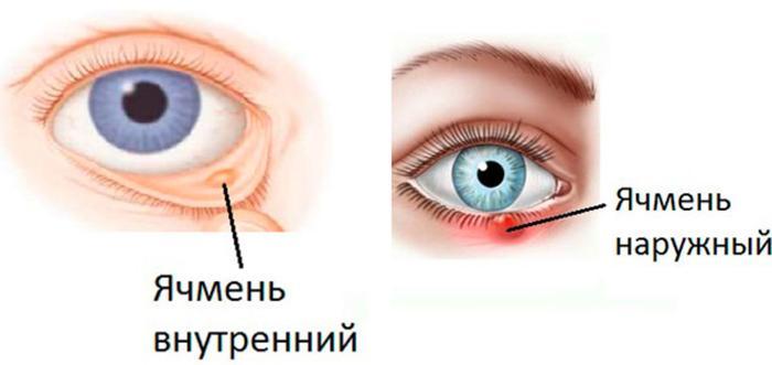 Виды ячменя на глазу