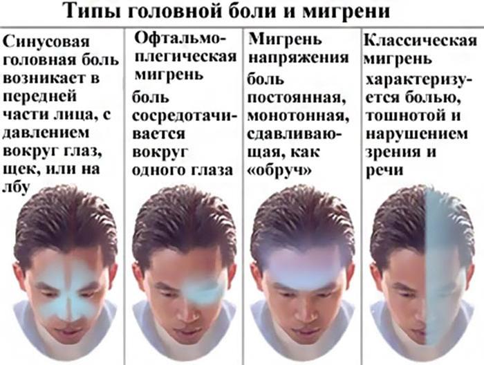 Виды и симптомы мигрени