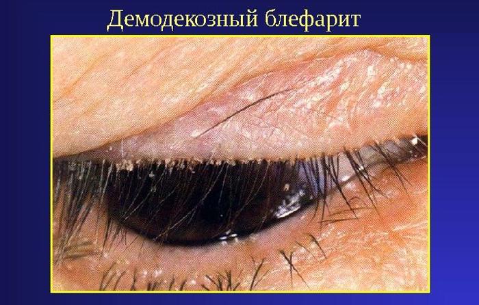 Симптомы демодекозного блефарита
