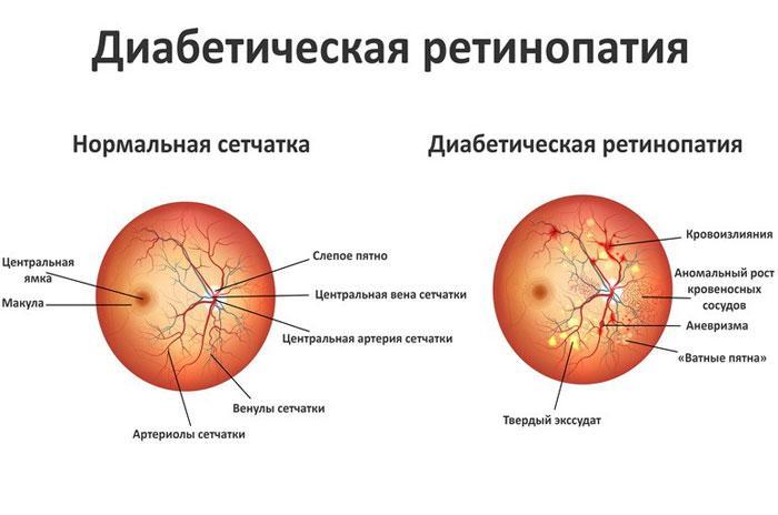 Диабетическая ангиопатия