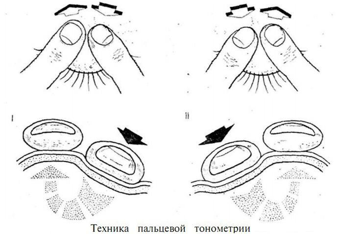 Техника пальцевой тонометрии