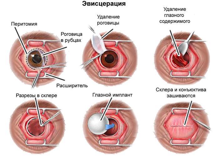 Проведение эвисцерации глаза