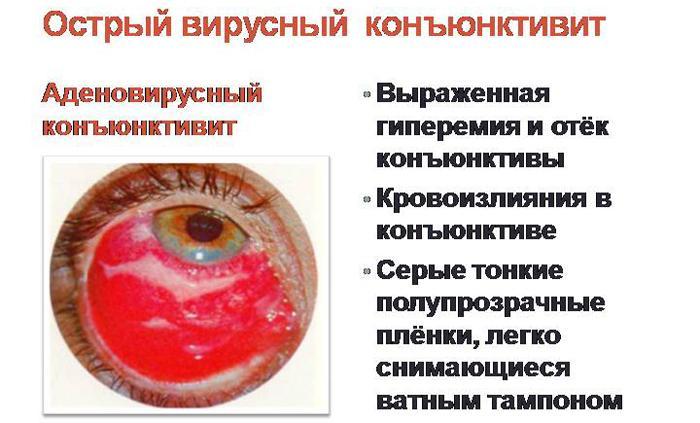 Аденовирусный кератоконъюнктивит симптомы