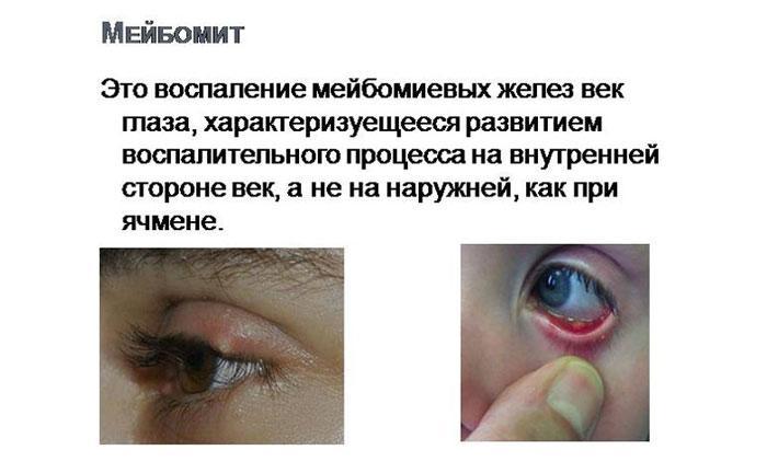 Симптомы мейбомита