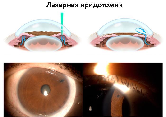 Принцип лазерной иридотомии
