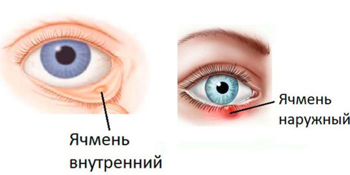 Виды ячменя на глазу, симптомы