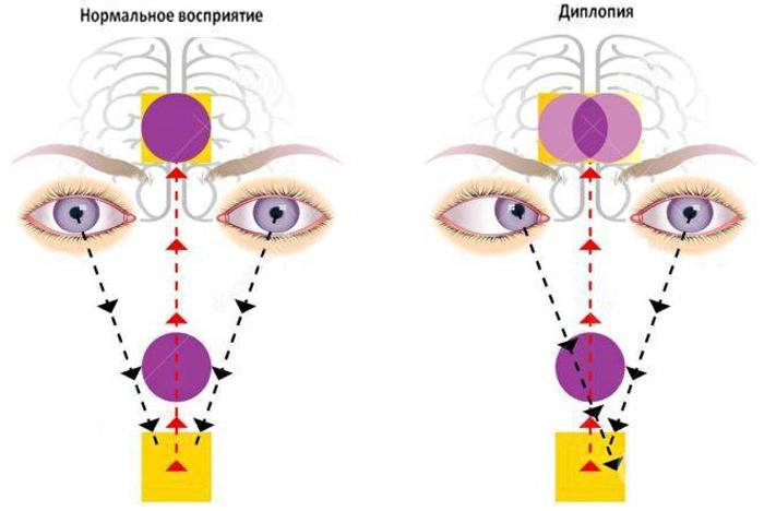 Что такое диплопия