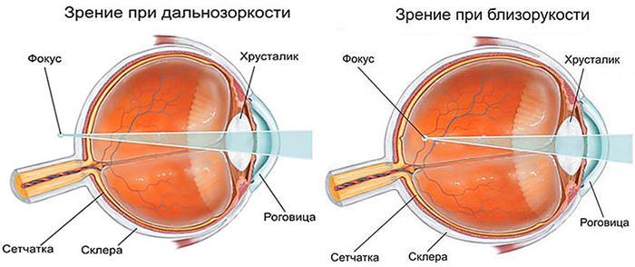 Зрение при близорукости и дальнозоркости