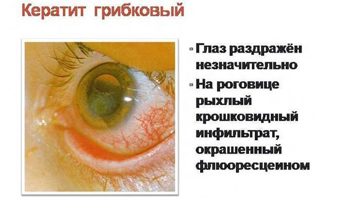 Грибковый кератит