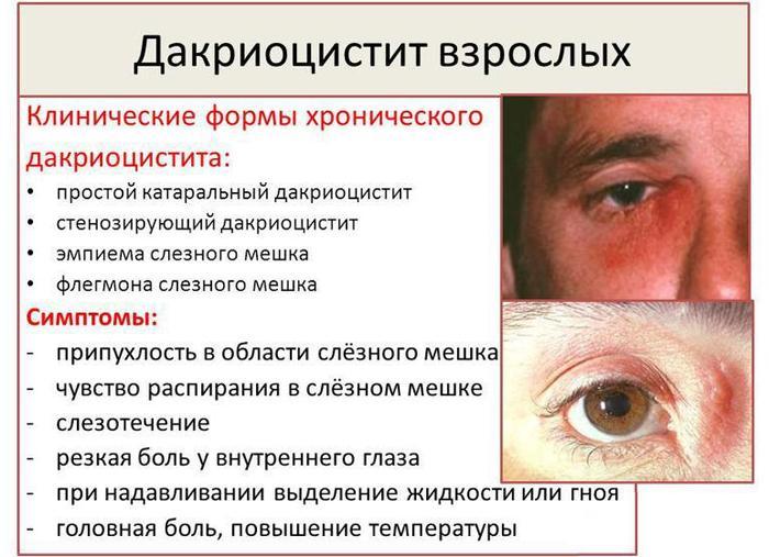 Симптомы дакриоцистита у взрослых