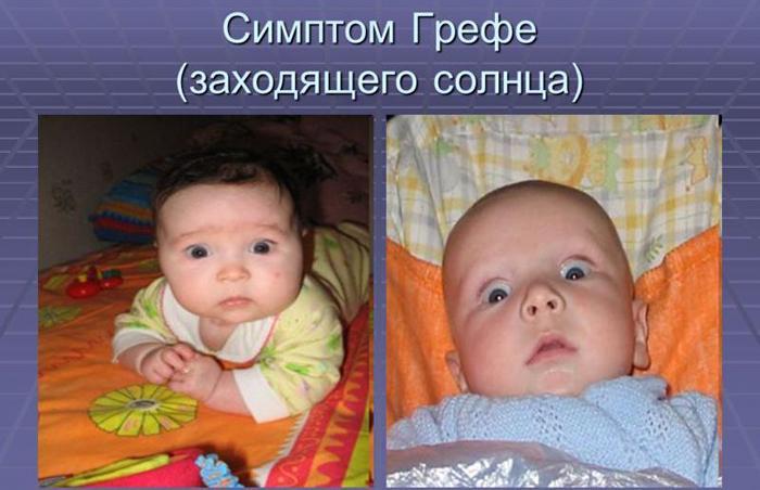 Синдром Грефе у младенцев