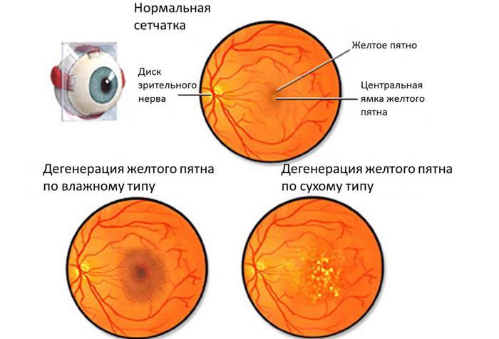 Макулярная дегенерация сетчатки глаза