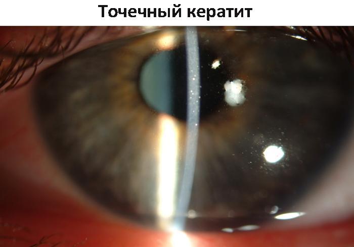 Точечный кератит