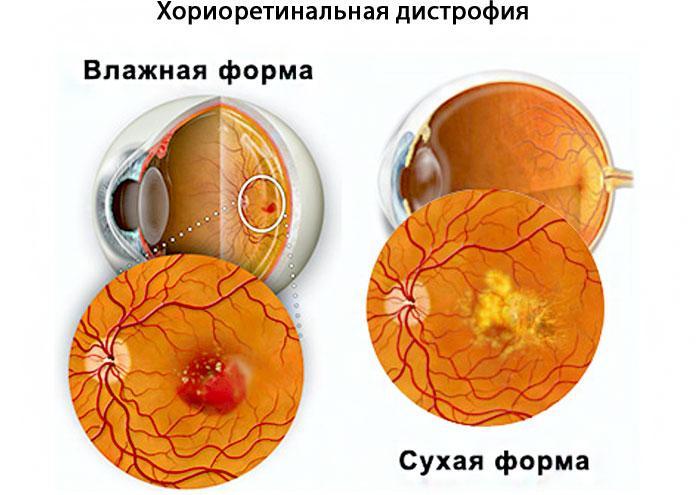 хориоретинальная дистрофия