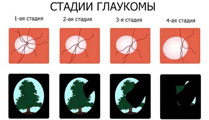 Четыре стадии глаукомы