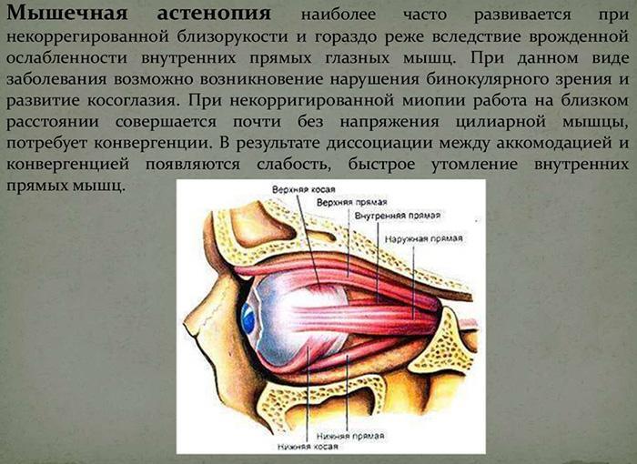 Мышечная астенопия