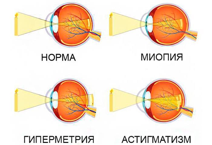 Виды аметропии