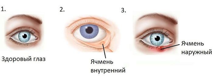 Симптомы ячменя на глазу