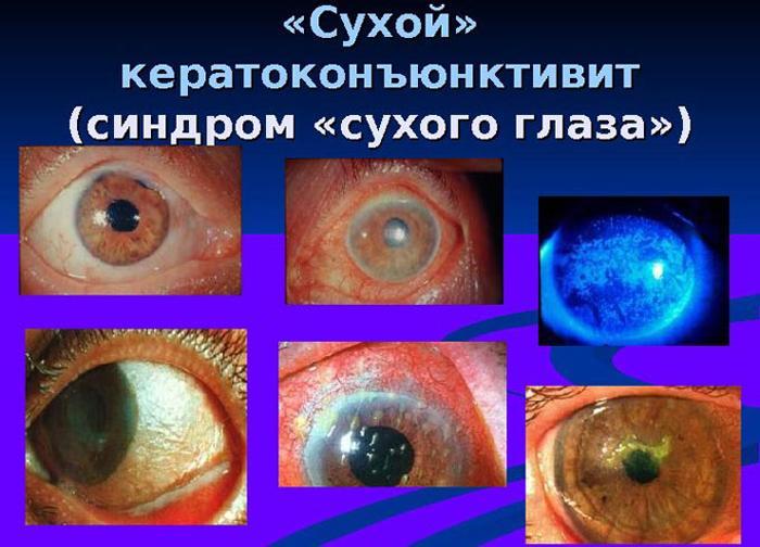 Сухой кератоконъюнктивит симптомы