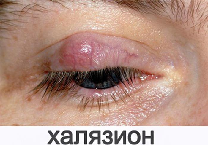Симптомы халязиона