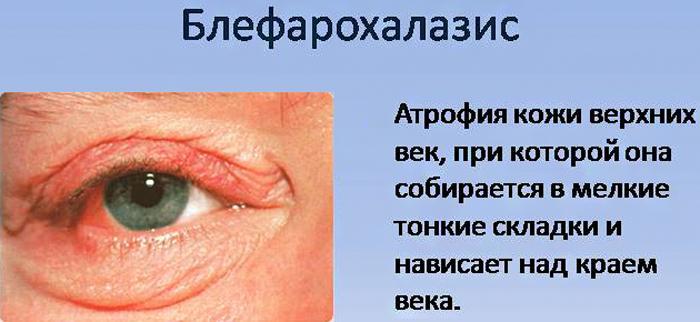 Блефарохалазис симптомы