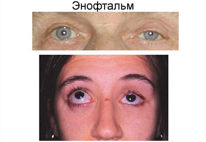 Симптомы энофтальма
