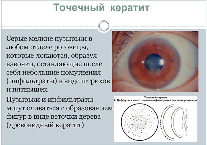 Симптомы точечного кератита