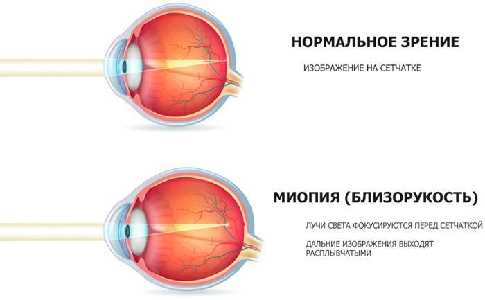 Миопия (близорукость)