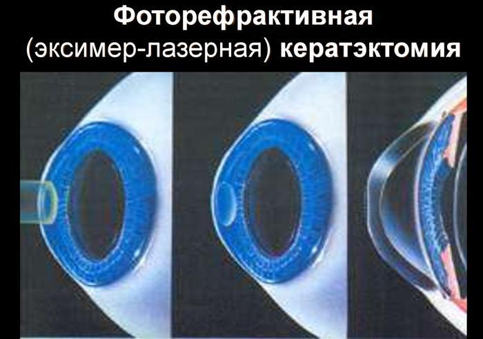 Эксимер-лазерная кератэктомия