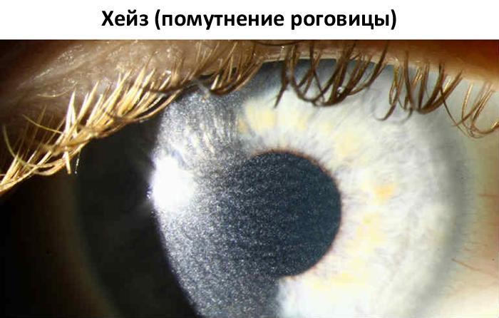 Помутнение роговицы (хейз)