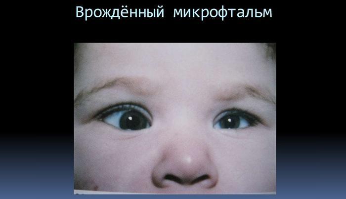 Врожденный микрофтальм