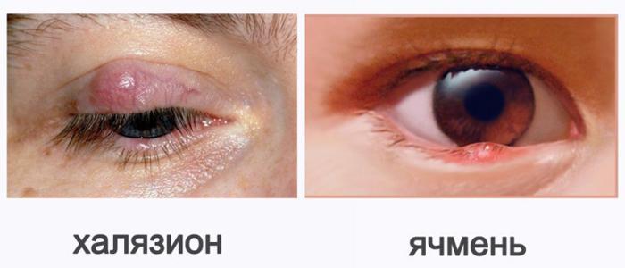 Симптомы халязиона и ячменя