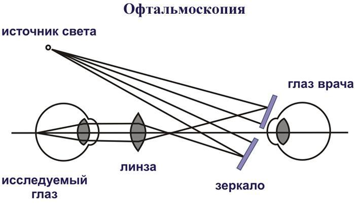 Офтальмоскопия как проводится