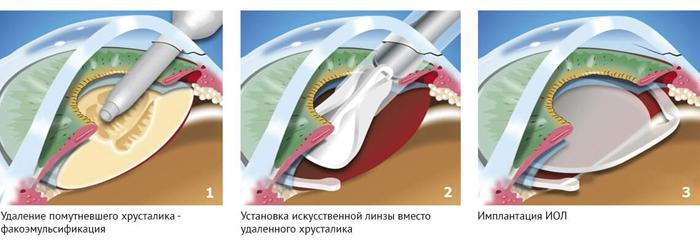 Этапы факоэмульсификации катаракты