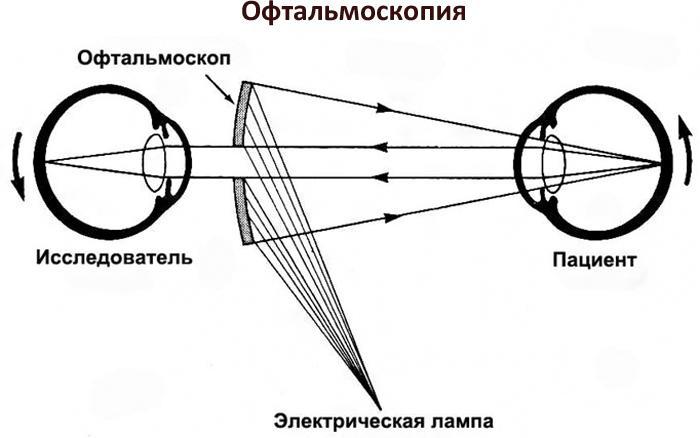 Как проходит офтальмоскопия