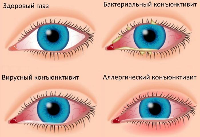 Симптомы и виды конъюнктивита