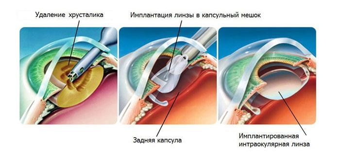 Удаление хрусталика глаза и последующая замена на ИОЛ.