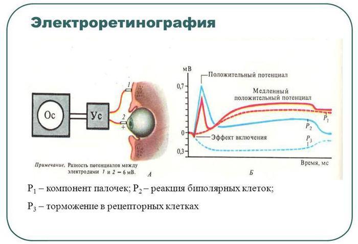 Электроретинография