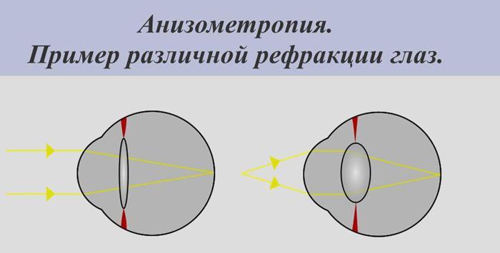 Анизометропия