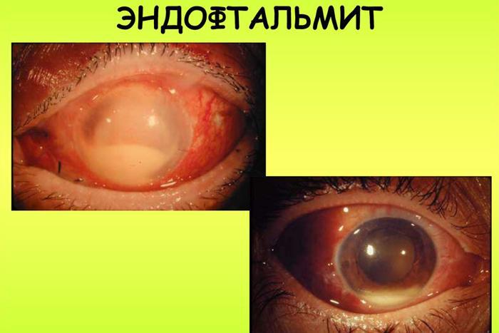 Симптомы эндофтальмита