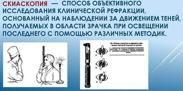 Скиаскопия
