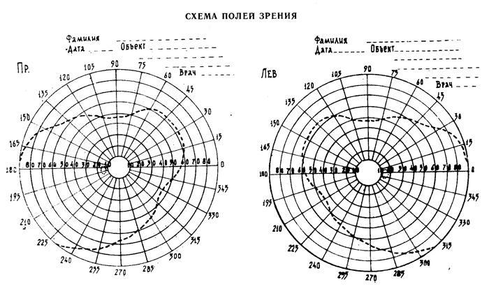 Периметрия (схема полей зрения)